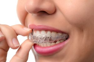 When to Start Adult Orthodontic Treatment